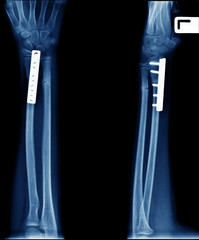 x-ray photo of broken arm ( fracture radius bone) orthopedic surgery internal fix by plate and screw
