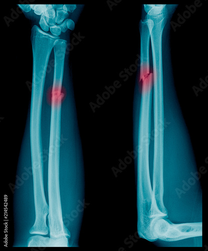 X-ray image of Forearm bone fracture in child\'s (Radius bone, Ulna ...