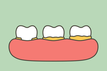 step of plaque or tartar , cause of tooth periodontal disease - dental cartoon vector flat style
