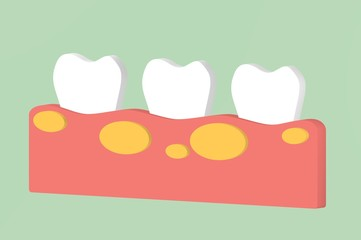 unhealthy teeth because gingivitis with abscess in gum - dental cartoon 3d render flat style