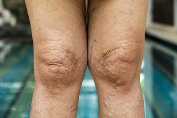 Varicose veins on the back of knees and  legs in Senior women