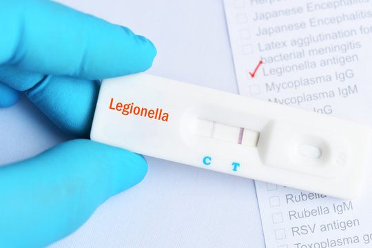 Legionella positive test result by using rapid test cassette