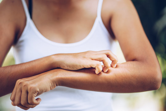 Young women hand scratch the itch on the arm, healthcare and medicine concept.