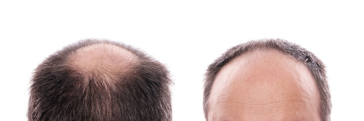 circular hair loss at the back of the head and receding hairline at the front Wall mural