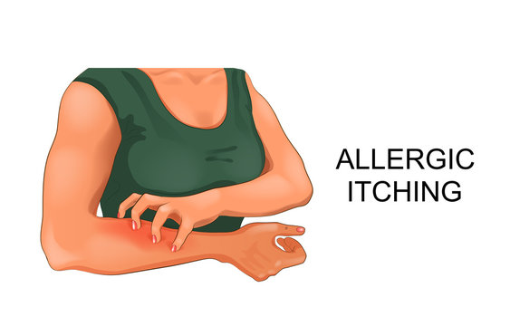 Allergic skin itching