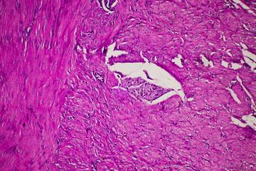 human stomach gastric mucosa intestinal metaplasia