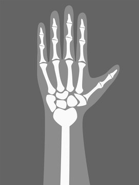 Human Arm Under X-rays Color Vector Illustration