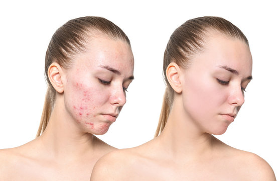 Young woman before and after acne treatment on white background. Skin care concept