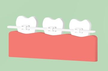 orthodontic teeth or dental braces - tooth cartoon 3d render