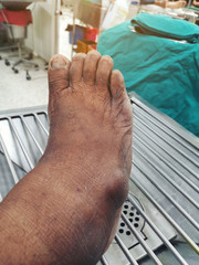Painful gout inflammation and deformity at foot.