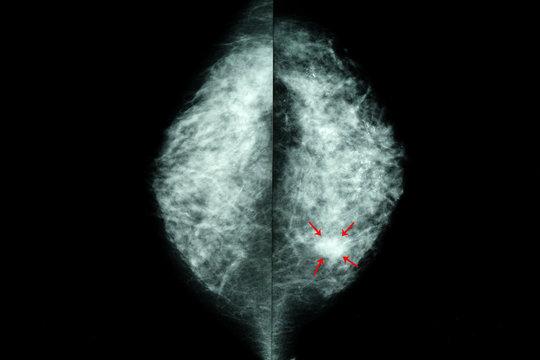 mammogram of  female breasts