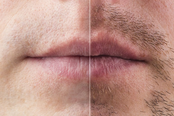 The result on the mans face after shaving, before and after. Effect of after shave cream. Hair transplantation on the beard. Close-up