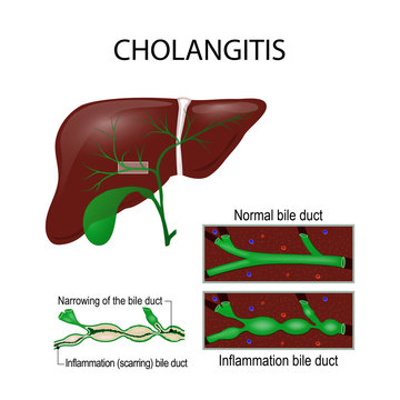 Cholangitis. Cross section of the human liver, bile duct, and gallbladder.