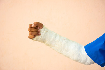 The arm was splinted due to a broken arm accident.