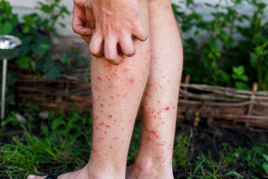 Man scratch the itch with hand, Leg, itching, Concept with Healthcare And Medicine. Mosquito bumps