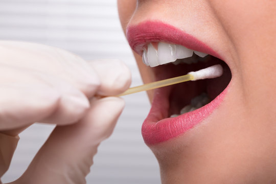 Dentist's Hand Taking Saliva Test From Woman's Mouth