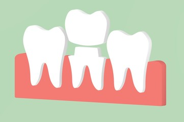 dental crown, installation process and change of teeth - tooth cartoon 3d render