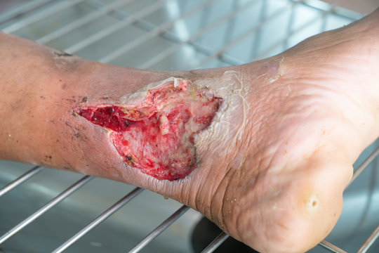 Close up Infected wound.Opened wound at left leg
