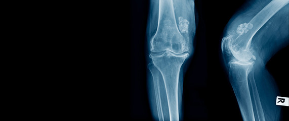 x-ray OA knee with structure like calcium