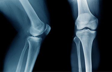 x-ray OA knee x-ray