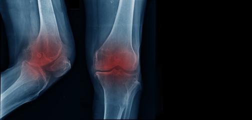 severe knee arthritis, OA knee x-ray