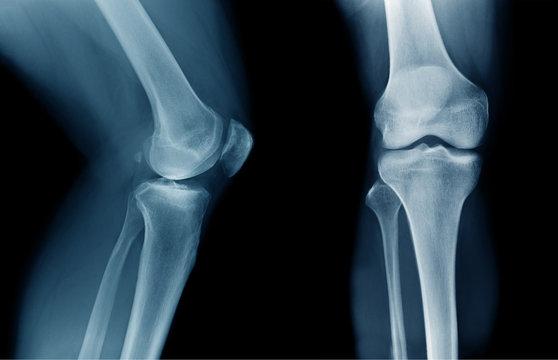 x-ray OA knee x-ray