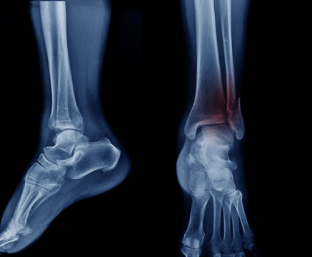 x-ray image tibia fracture