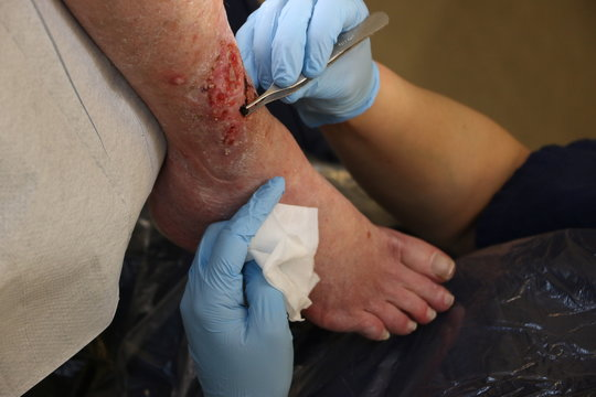 Wound on the leg