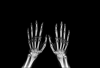hand and finger x-ray image
