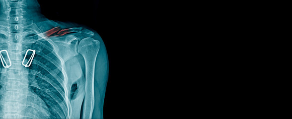 clavicle fracture x-ray image