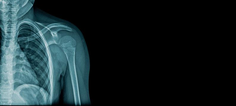 shoulder x-ray image