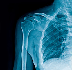 shoulder x-ray banner
