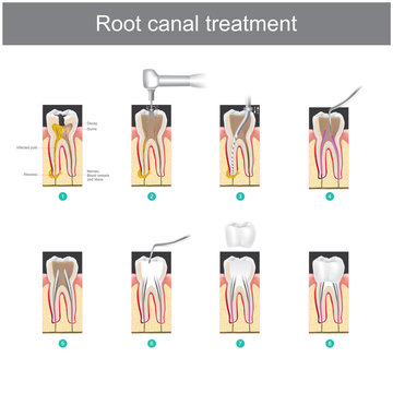 Root canal treatment. How to treat our teeth after the tooth is damaged. or severe caries as causes infection or inflammation