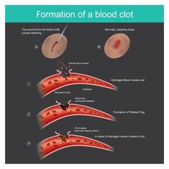 Formation of a blood clot. The wound from the sharp knife on skin Slightly bleeding, The body can respond to stop blood out flow from the capillaries, And anti-bacterial through the body.