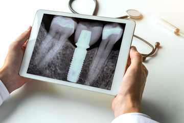 Dentist watching a dental x-ray teeth with dental pivot on digital tablet. Radiology concept