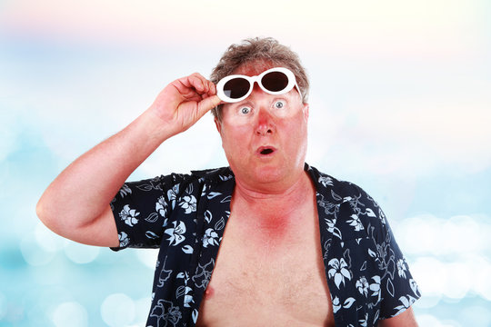 Sunburned man with sunglasses lines