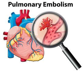 Human anutomy pulmonary embolism