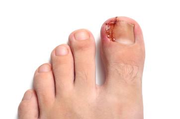Nail figure, ingrown nail, purulence onychocryptosis. Isolated on white