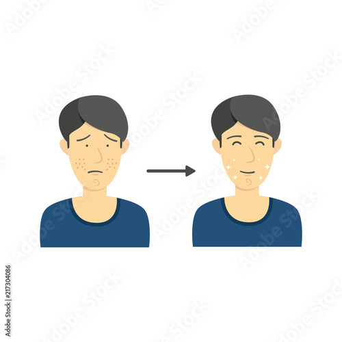 Black Hair Male From Acne Face To Clean Face Without Acne Diagram