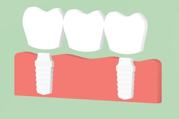 dental implant with bridge, installation process and change of teeth - tooth cartoon 3d render