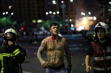 Injured protester is pictured during a demonstration in Bucharest
