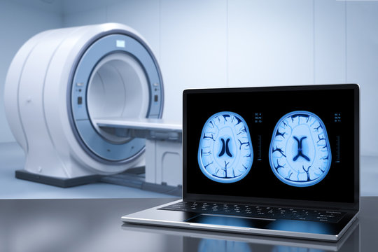 notebook display x-ray brain
