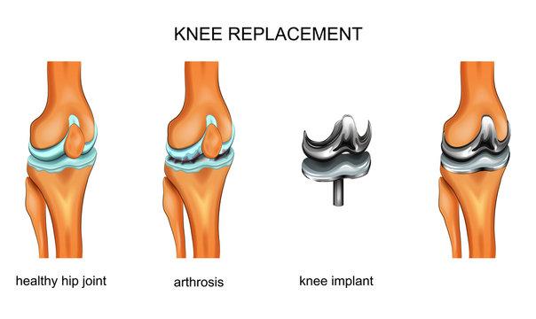 knee joint endoprosthesis