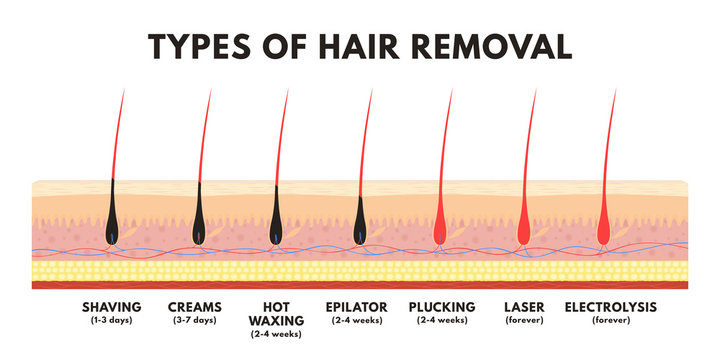 Hair removal concept. Shaving, depilation cream, waxing, epilator, plucking, laser hair removal and electrolysis. Comparison of different types of hair removal