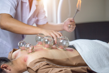 Traditional Chinese Medicine Treatment - Acupuncture