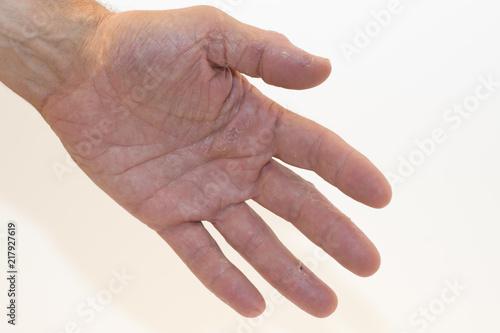 Linke Handfläche Juckt