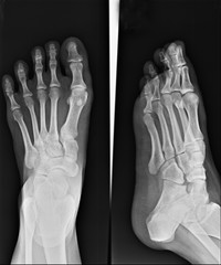 human foot ankel and leg x-ray picture