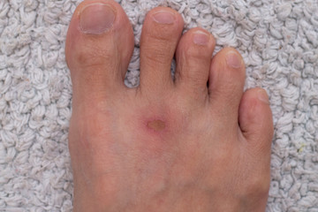 Ulcer and inflammation on foot