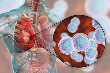 Lung infection caused by bacteria Moraxella catarrhalis, 3D illustration. Bacterial pneumonia medical concept