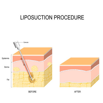 liposuction procedure. Before and after.